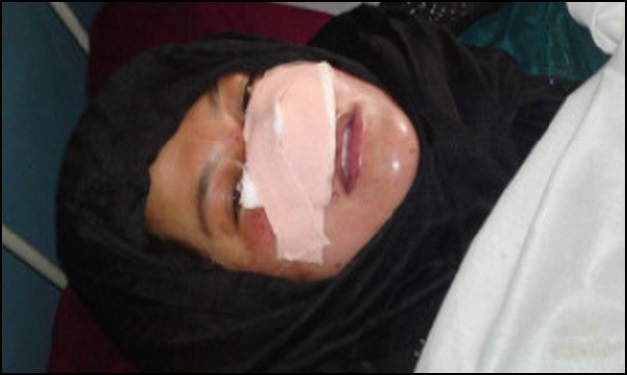 Afghan women cuts another woman's nose off her face