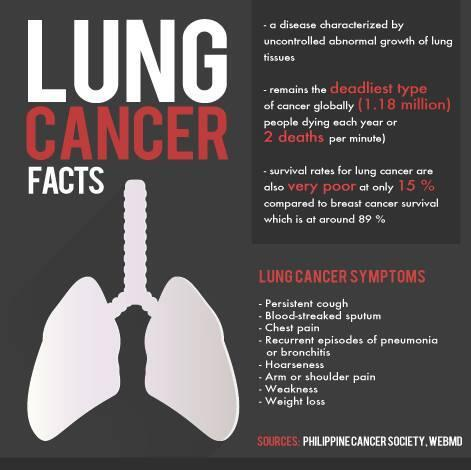 Are you a smoker or at least, a high-risk individual? Here are the warning signs of lung cancer