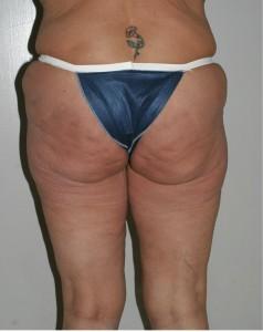 3.-wrincled-butt-238x300