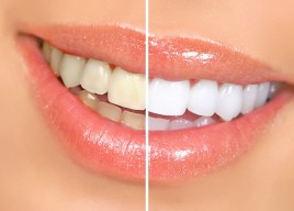 How You Can Naturally Whiten Your Teeth