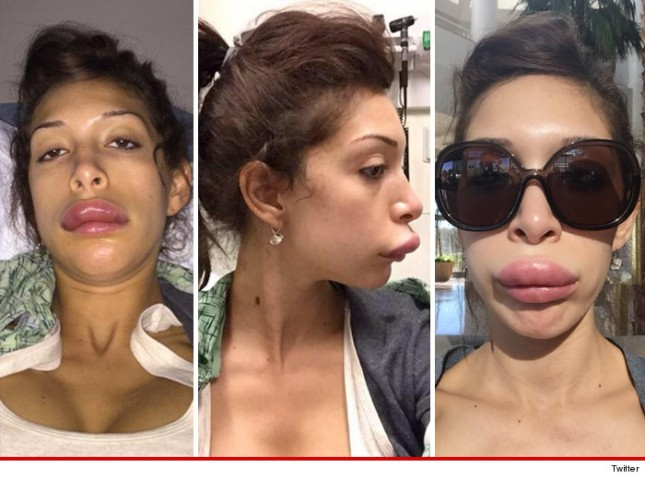 "Farrah Abraham Gets Botched Lip Injections, Shares Shocking Pictures: ""Don't Say I Didn't Warn Ya!"""